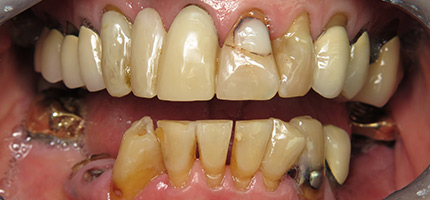 Close up of a mouth before dentures