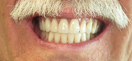 Close up of a mouth after dentures