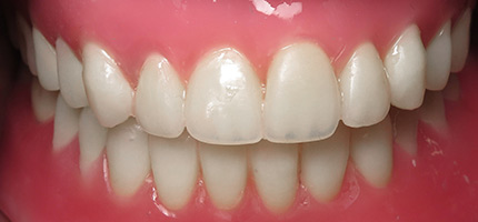 Close up of a mouth after cosmetic dentures