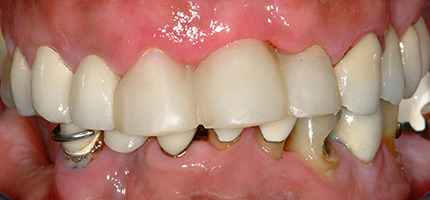 Close up of a mouth before cosmetic dentures