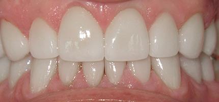 Close up of a mouth after smile rejuvenation