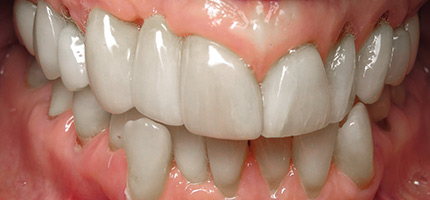 Close up of a mouth after an anterior bridge