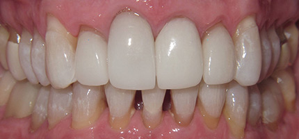 Close up of a mouth before Bioclear