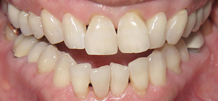 Close up of a mouth before Invisalign straightening