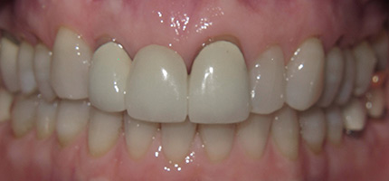 Close up of a mouth before an anterior bridge