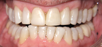 Close up of a mouth after Composite Bonding