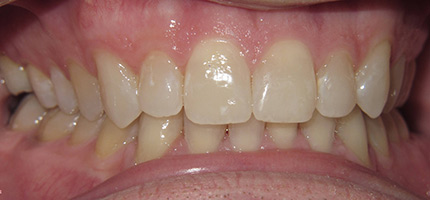 Close up of a mouth after bleach