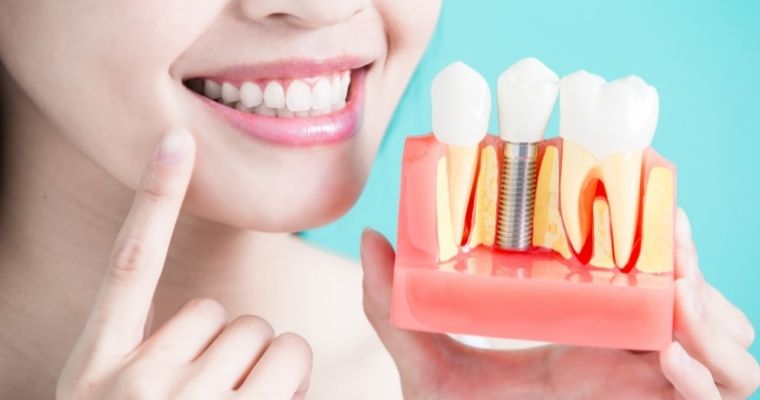 woman smiling and holding up model of dental implant restoration